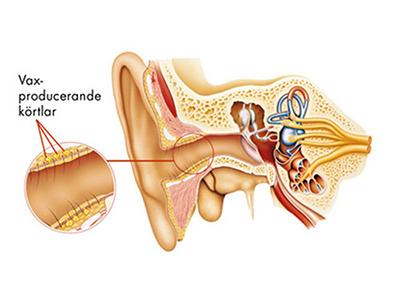 lösa upp vaxpropp i örat